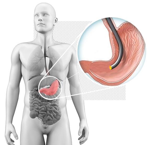 """<h1> <span> ENDOSCOPIA  </span> </h1> <p> Olhar para dentro do paciente. É isso que a Endoscopia Digestiva realiza. É uma especialidade médica que permite o diagnóstico e tratamento de doenças do aparelho digestivo. </p>     <a href=""""http://clinicazago.com.br/exames/endoscopia/"""">Saiba mais</a>"""