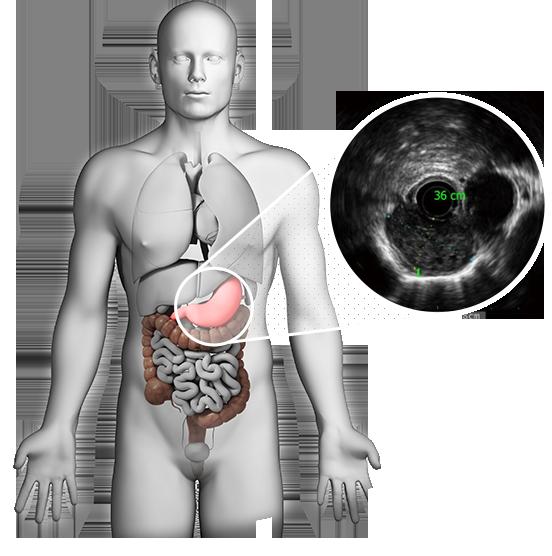 """<h1> <span> ECOENDOSCOPIA  </span> </h1> <p> Na Clínica Zago, realizamos os exames de Ecoendoscopia, também conhecida como ultrassonografia endoscópica, método inovador que associa a endoscopia digestiva com a ultrassonografia em um mesmo procedimento. </p>     <a href=""""http://clinicazago.com.br/exames/"""">Saiba mais</a>"""