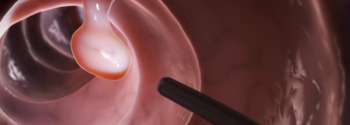 Orientações sobre a Endoscopia