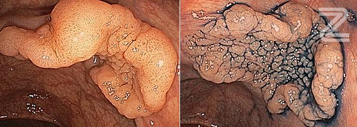 Dissecção Endoscópica da Submucosa (ESD) – Cirurgia Endoscópica